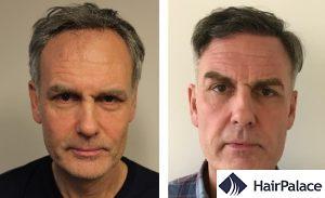Dense hair transplant result in Milton Keynes