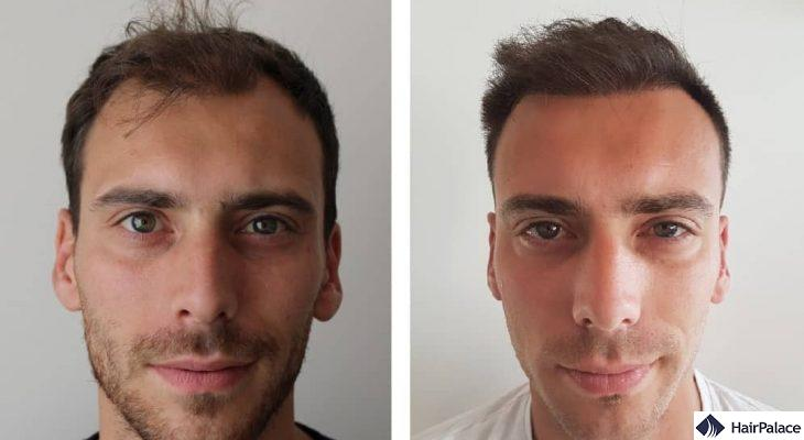 Plymouth hair transplant result