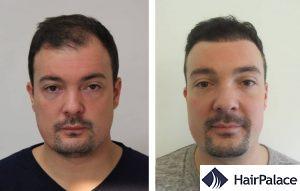 Wakefield hair transplant result