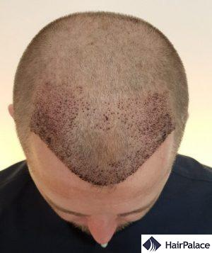 Neil 1 week after the FUE2 transplant