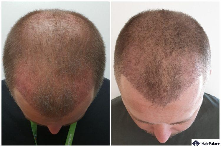 Neil's hair 3 weeks and 3 months after the procedure