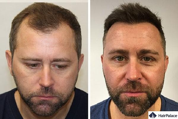 Neil before and after our hair transplant