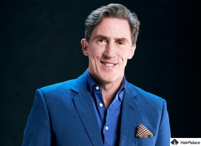 Rob Brydon successful hair transplant surgery