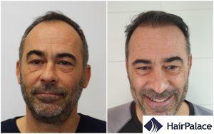 Peterborough hair transplant result