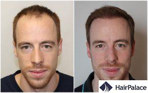 hair transplant result in Swindon