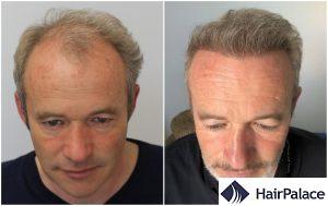 York hair transplant result