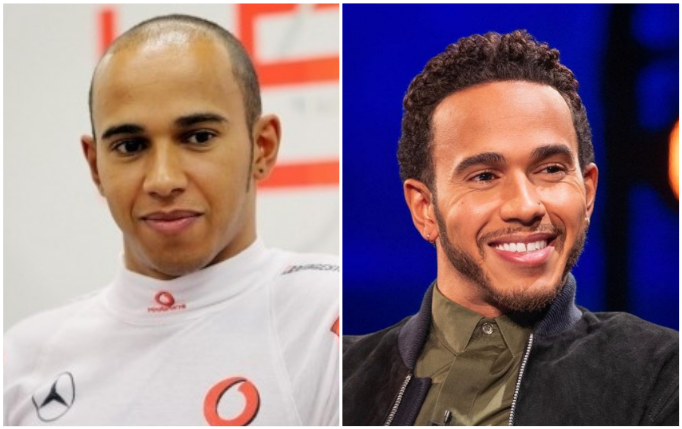 Lewis Hamilton's before and after hair transplant