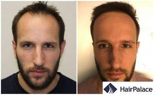 Portsmouth hair transplant result