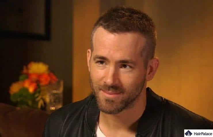 Ryan Reynolds' mature hairline