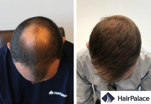 best hair transplant result in Sheffield
