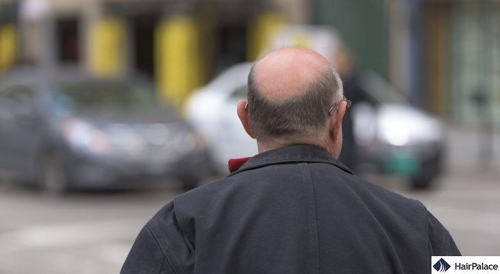 WAY-316606 real hair loss treatment
