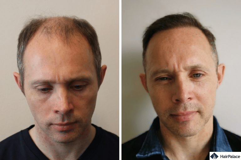 WAY-316606 or fue2 hair transplant method