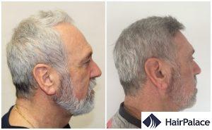 Dense hair transplant result in Wolverhampton