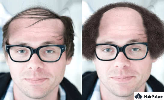Best applications to visualise baldness