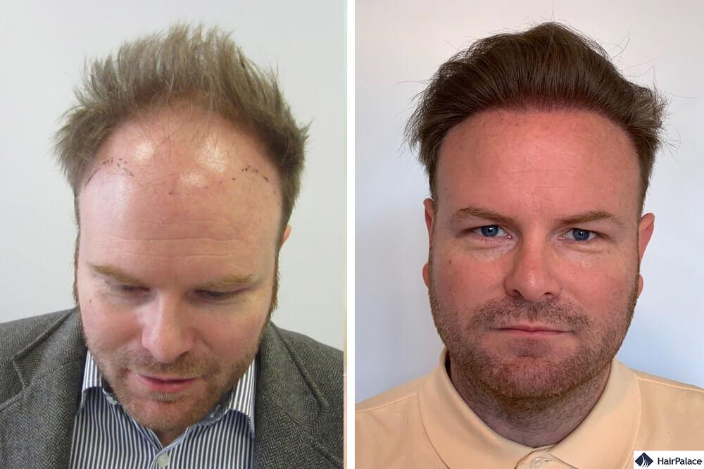 David before and after his hair transplant
