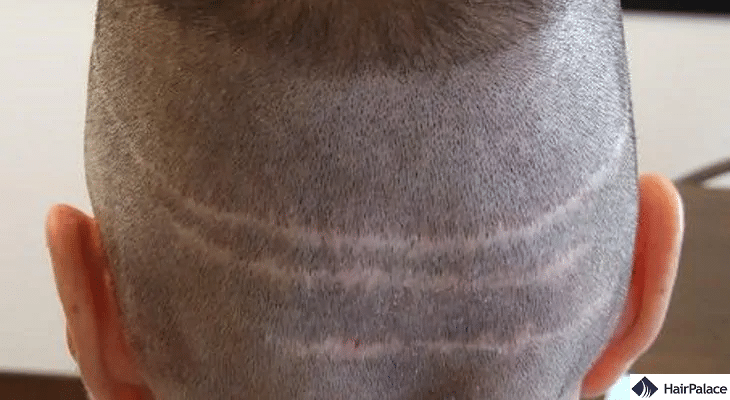 hair transplant and scars