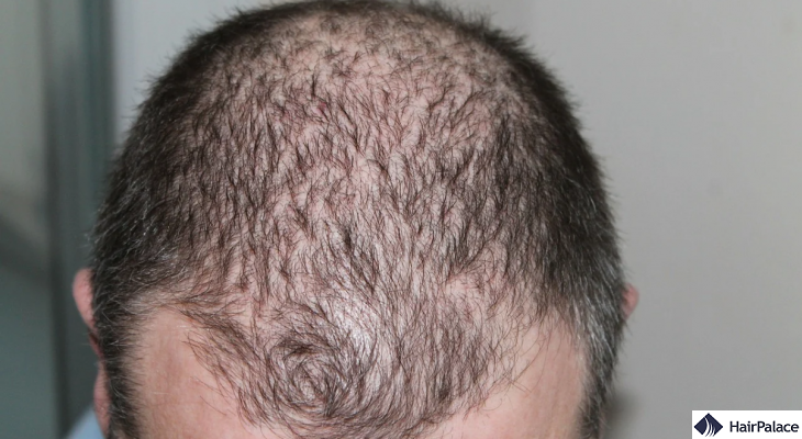 The best hair loss forum sites for men and women