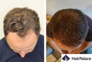 natural hair transplant result in Glasgow