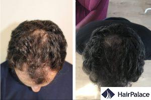 natural, dense result with a hair transplant in Nottingham