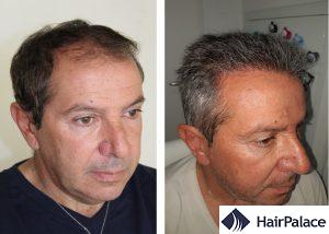 Harrow effective hair transplant result