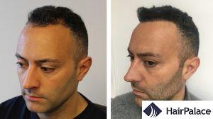 dense hair transplant result in Reading