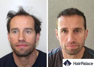 Swansea hair transplant result