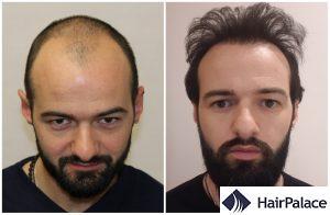 hair transplant result in Huntingdon