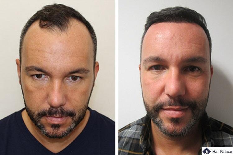 Jerome hair transplant result