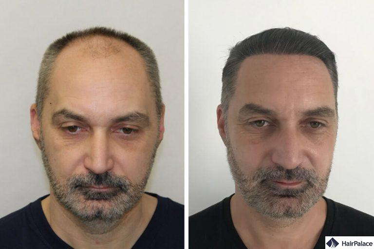 Nick before and after his hair transplant