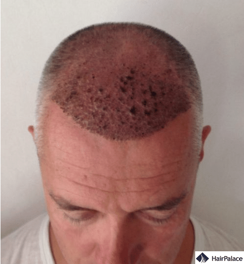 Pascal 1 week hair implantation result