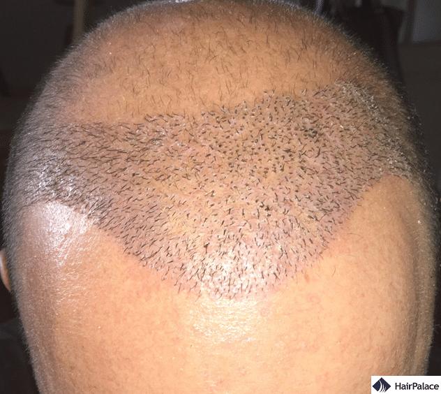 Xavier 1 week after his hair implantation