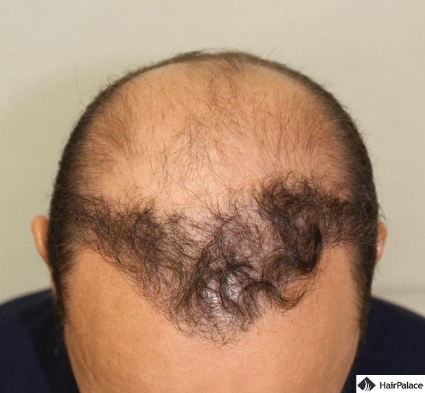Xavier's result of the 1st hair transplant
