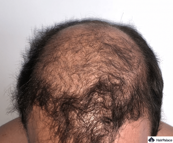 Xavier 3 months after hair implantation