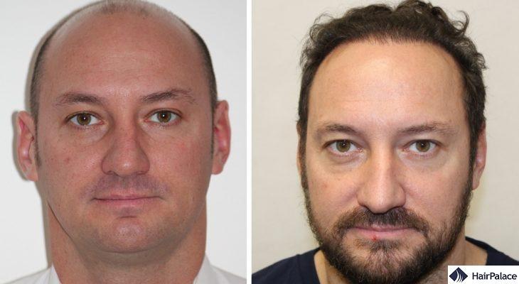 Xavier hair transplant result