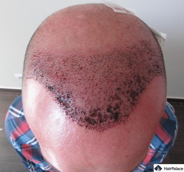 Xavier FUE2 hair transplant