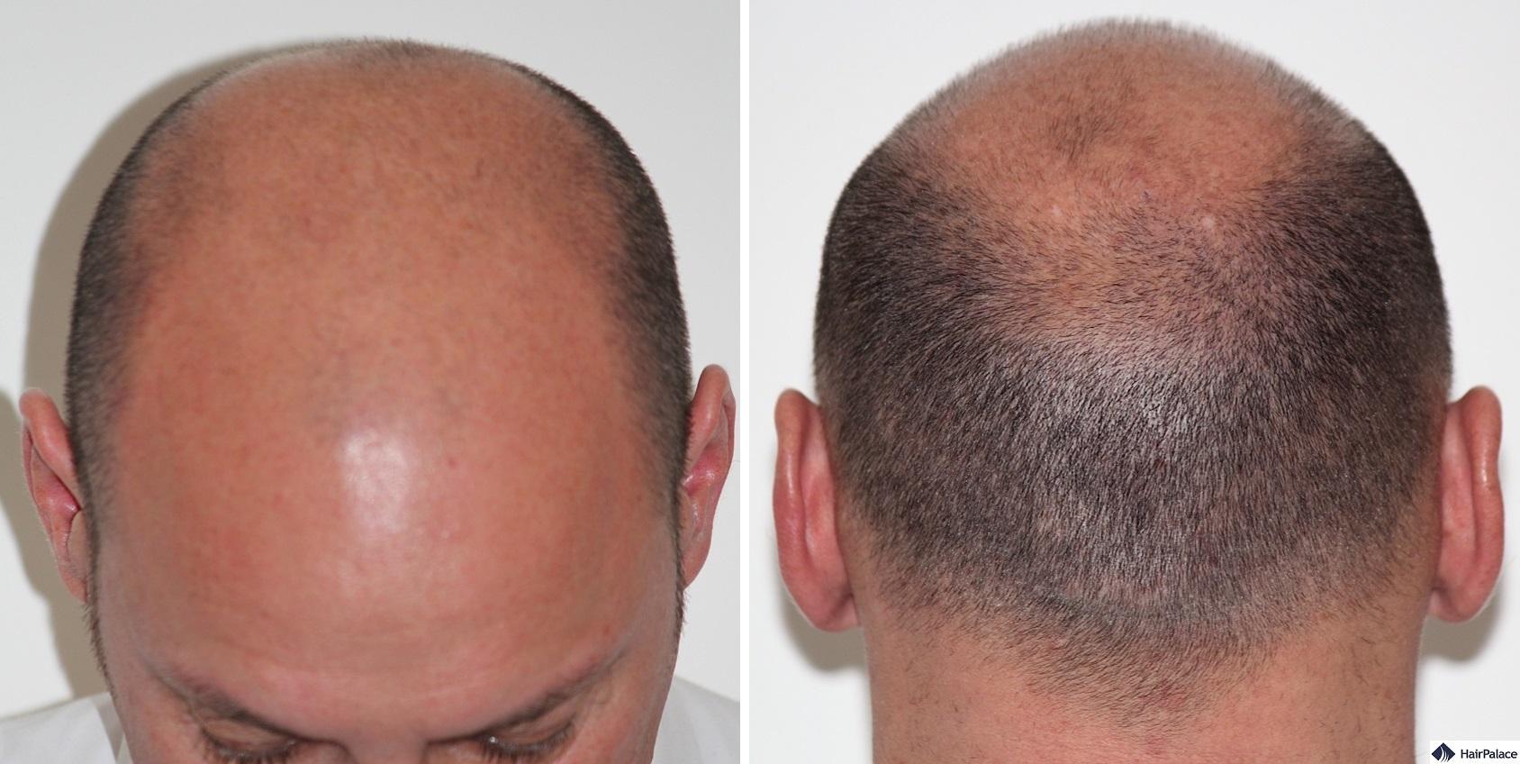Xavier before the hair transplant