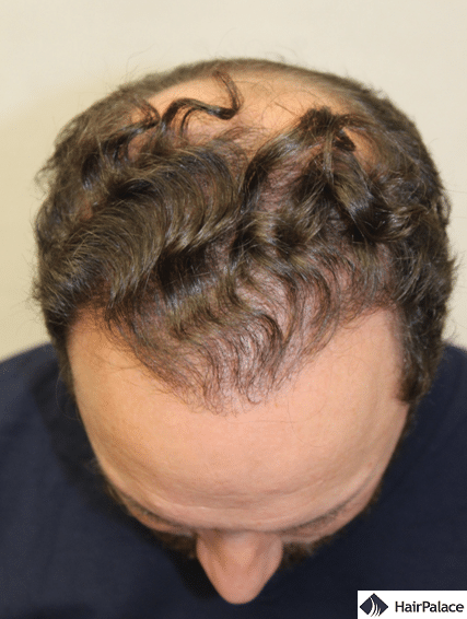 Xavier's result after the 2nd hair transplant