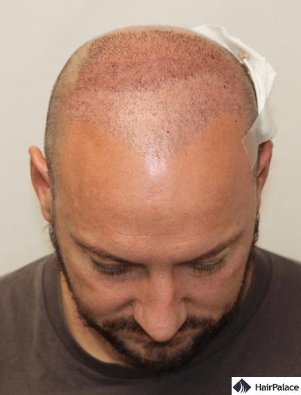 Xavier's second hair transplant