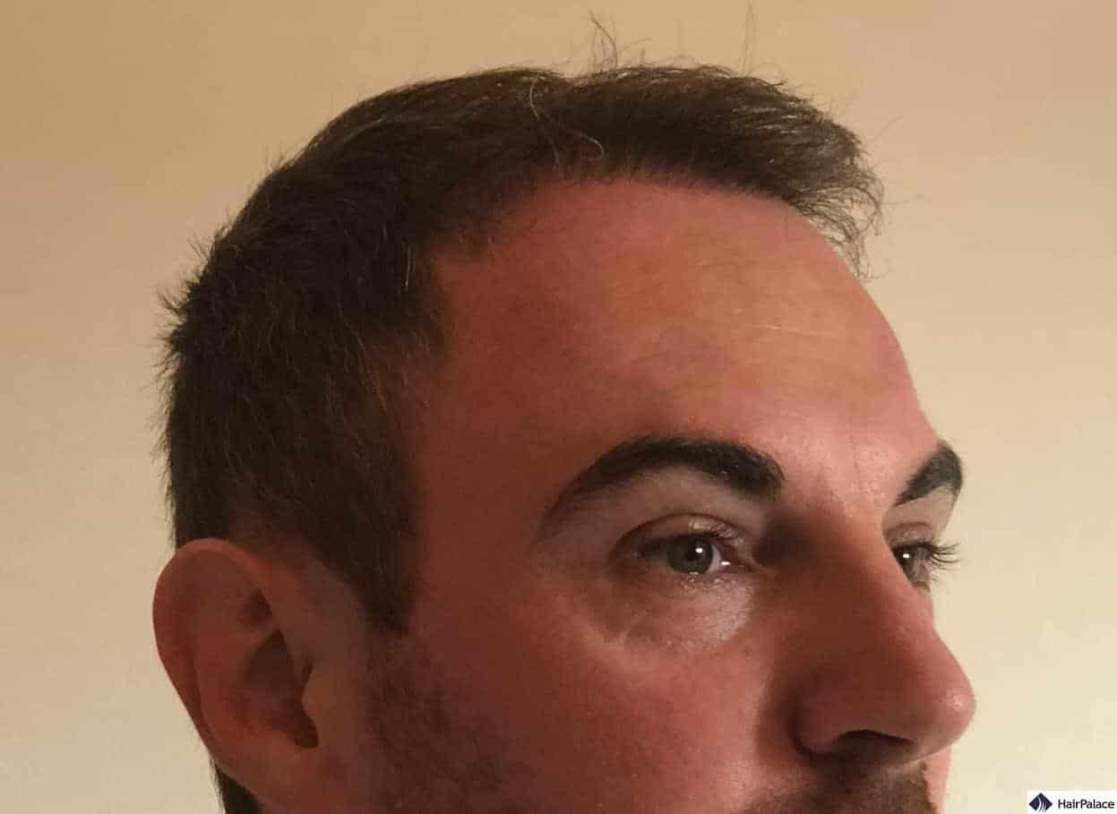 check up 6 months after hair transplantation