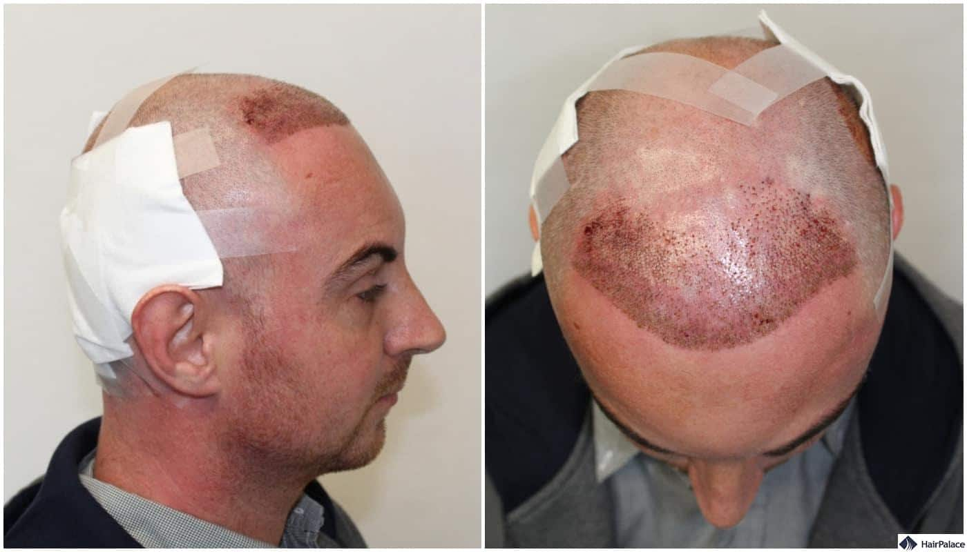 minutes after the FUE hair transplant