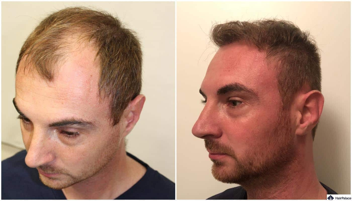 before and after the fue hair transplant