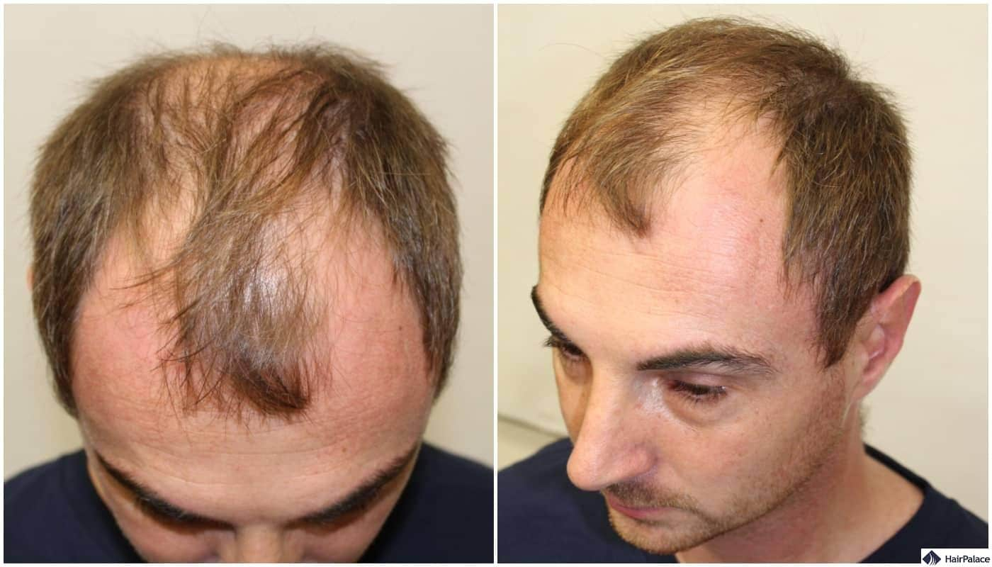 Alex' thinned out front before the surgical hair restoration