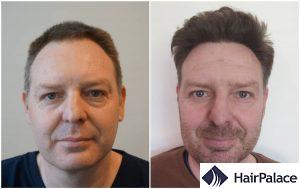 hair transplant in Chelmsford result