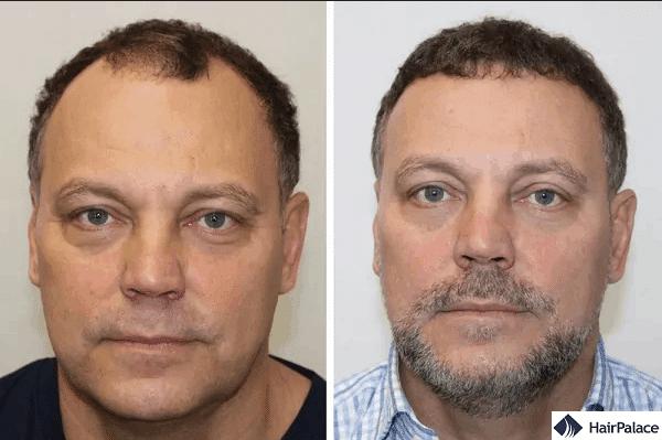 FUE2 hair restoration for receding hairline