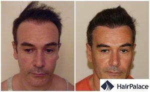 hair transplant result in Guildford