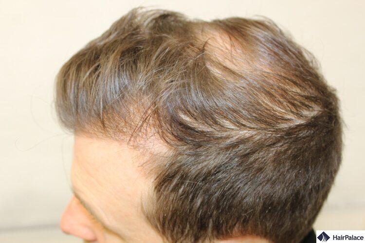 Peter's consultation before his FUE2 hair transplant