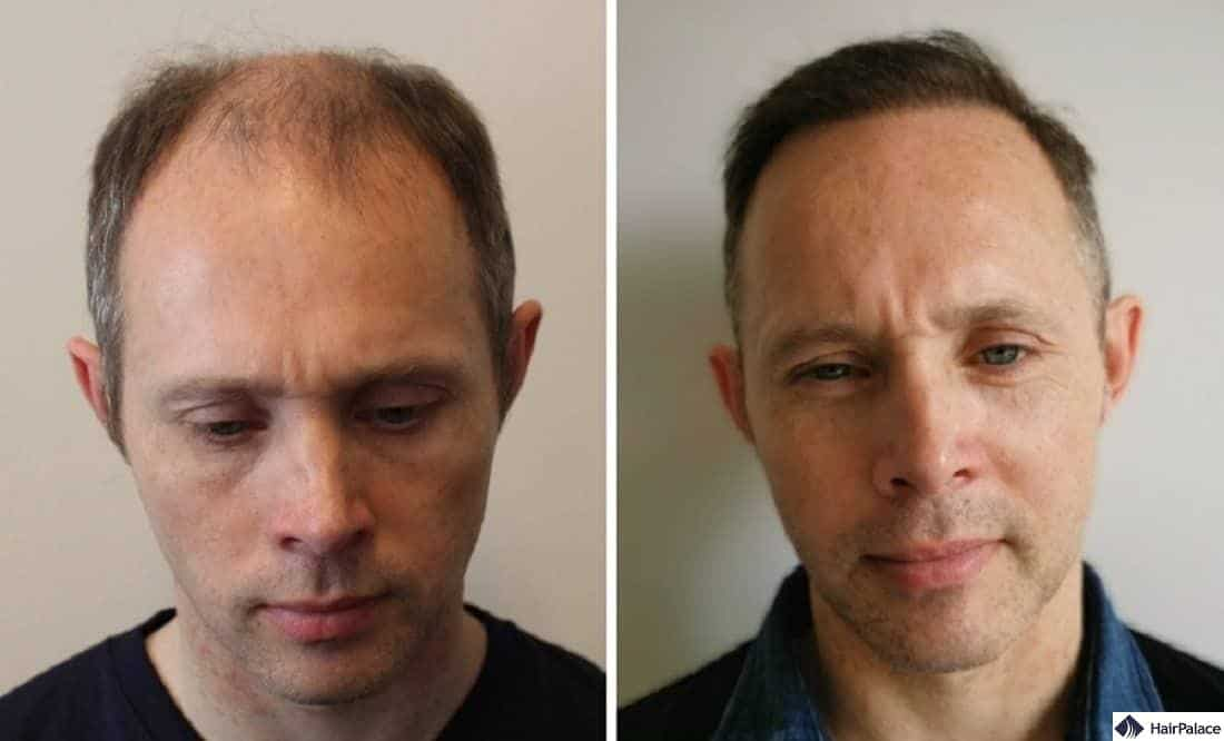 hair transplant before and after tom