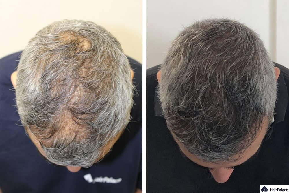 affordable surgical hair restoration