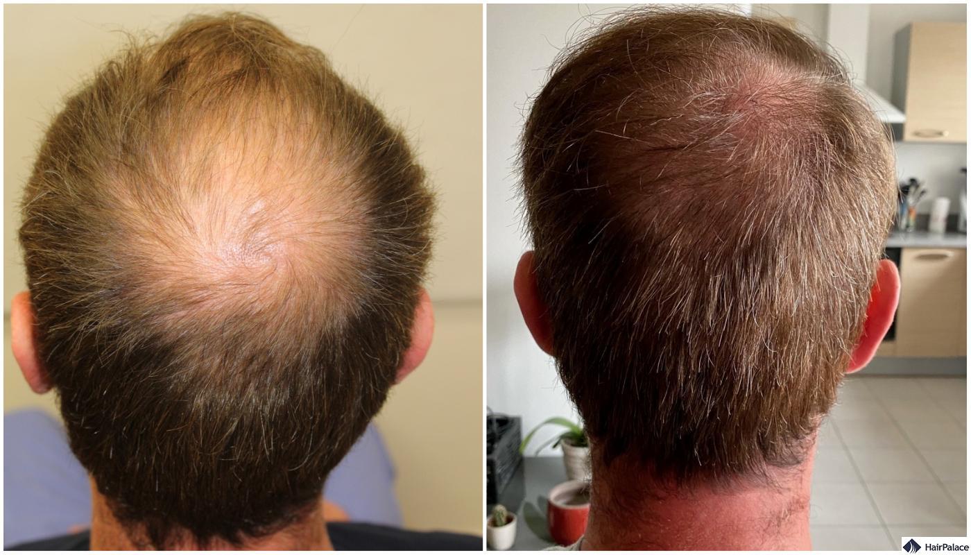 Alex successful hair transplant