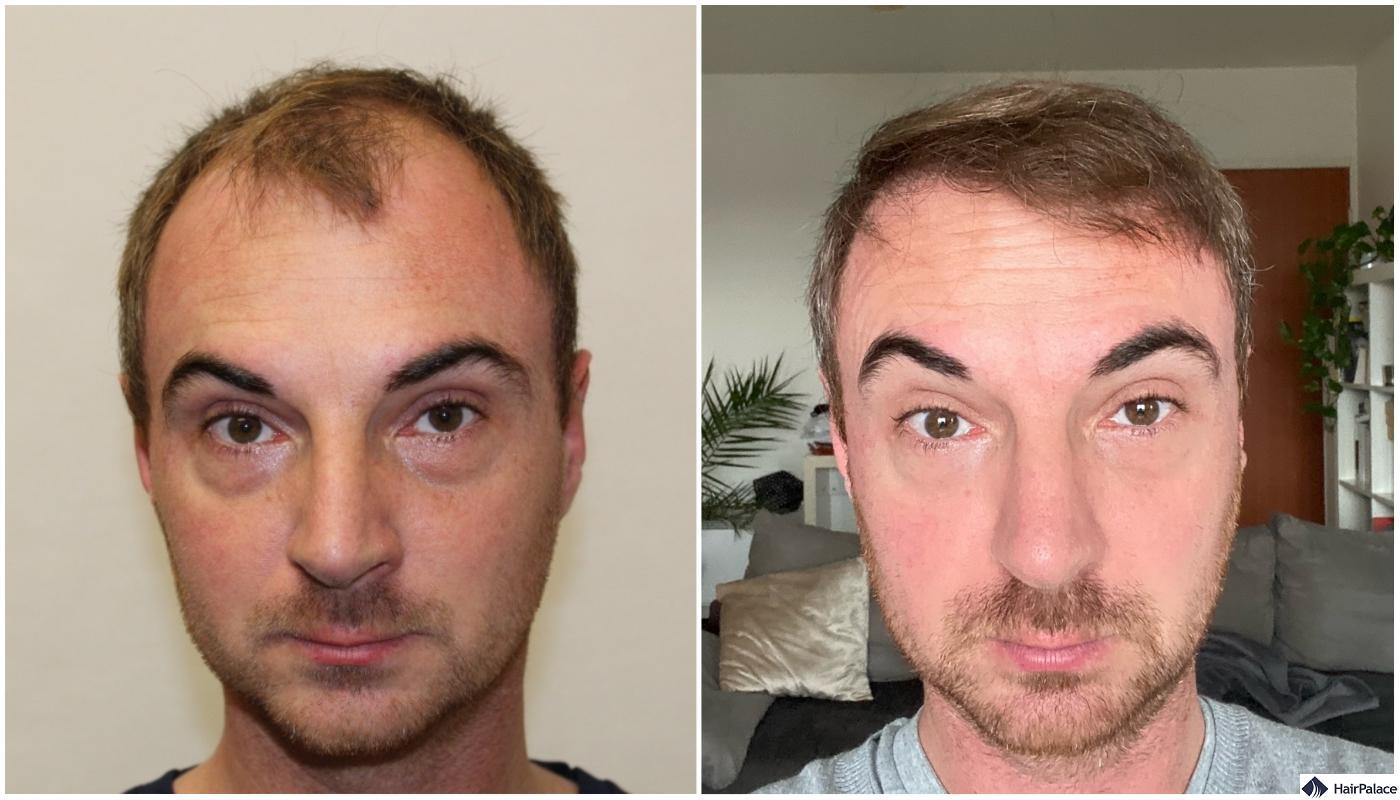 Result of hair restoration